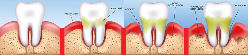 Osteoporosis: A risk factor for periodontitis