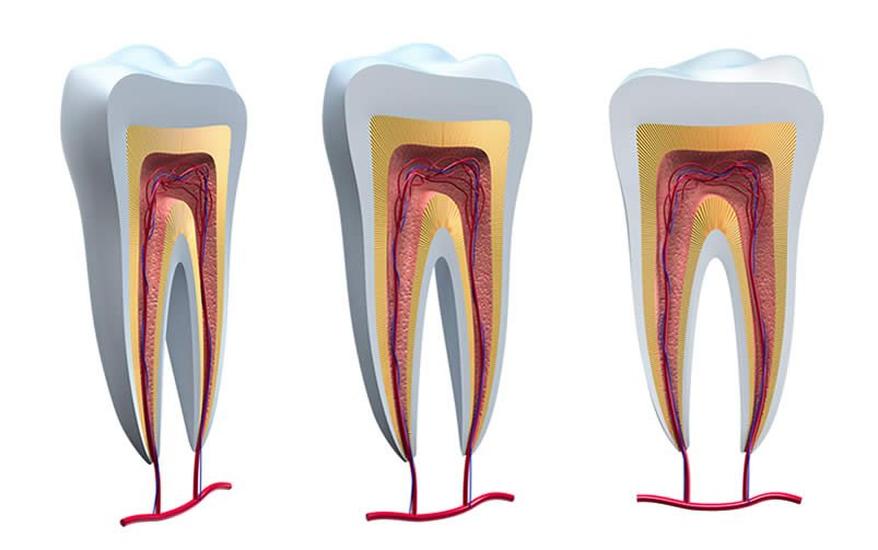 link between periodontal disease and heart health