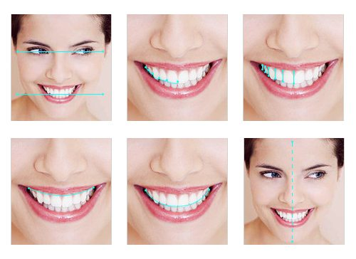 Principles Of Digital Smile Design