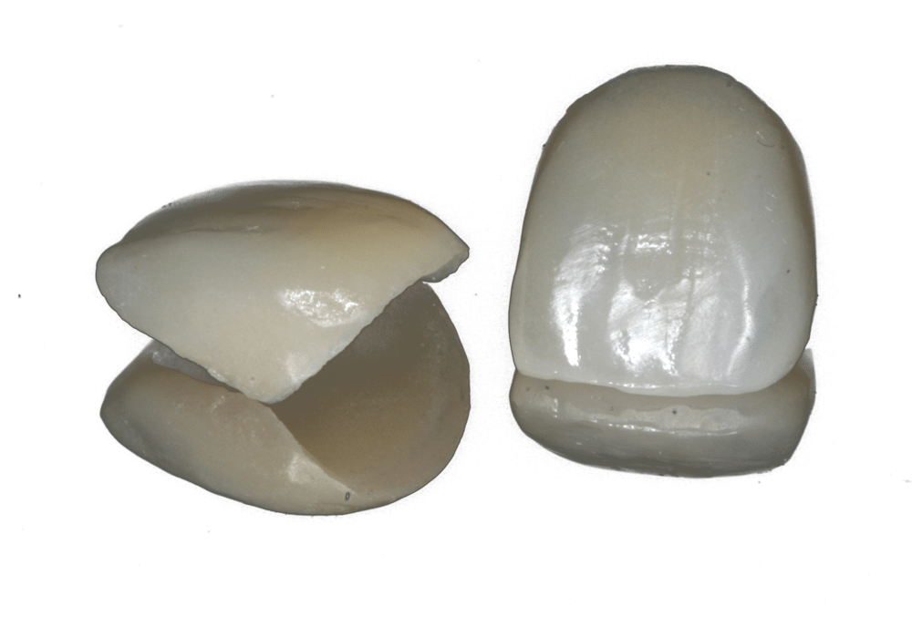 porcelain crowns in Preston