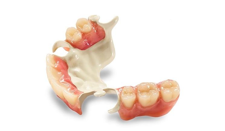 Metal Free Partial Dentures