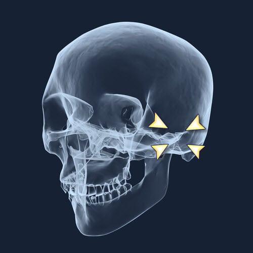 TMD Treatment Options