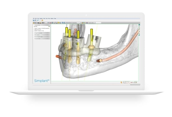 Virtual Dental Implants Surgery