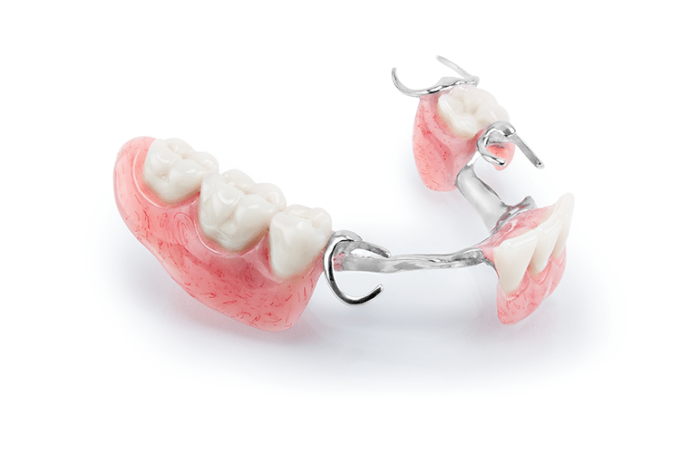 Partial Denture metal based