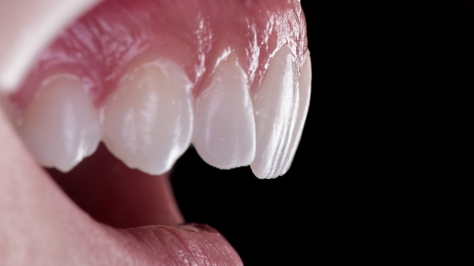 Private Dentures Cost