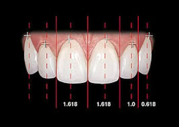 teeth size in ideal smile