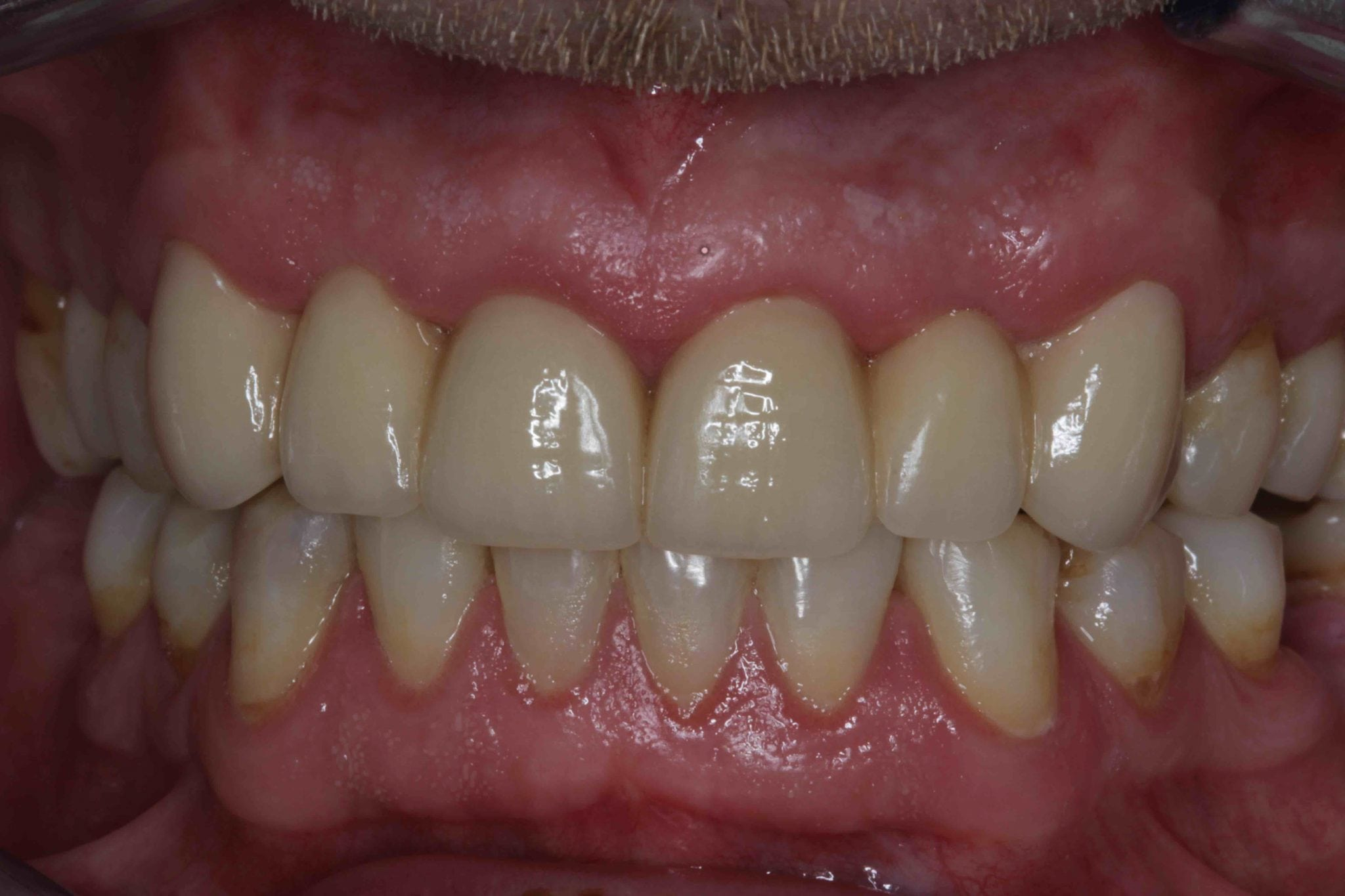 Dental Bridges Before and after pictures - Replacing extracted Teeth After