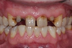dental bridge replacing missing teeth before after photos
