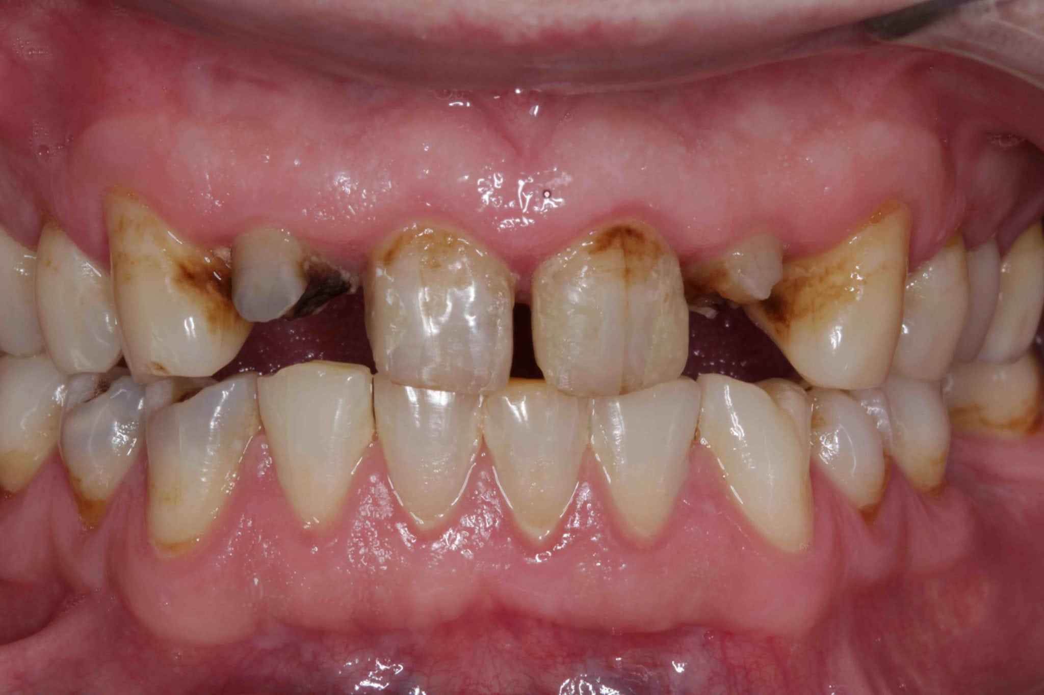 upper Dental bridges before after pictures - Broken down Teeth Treatment