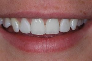 Cosmetic Dental Bonding on Fron Teeth
