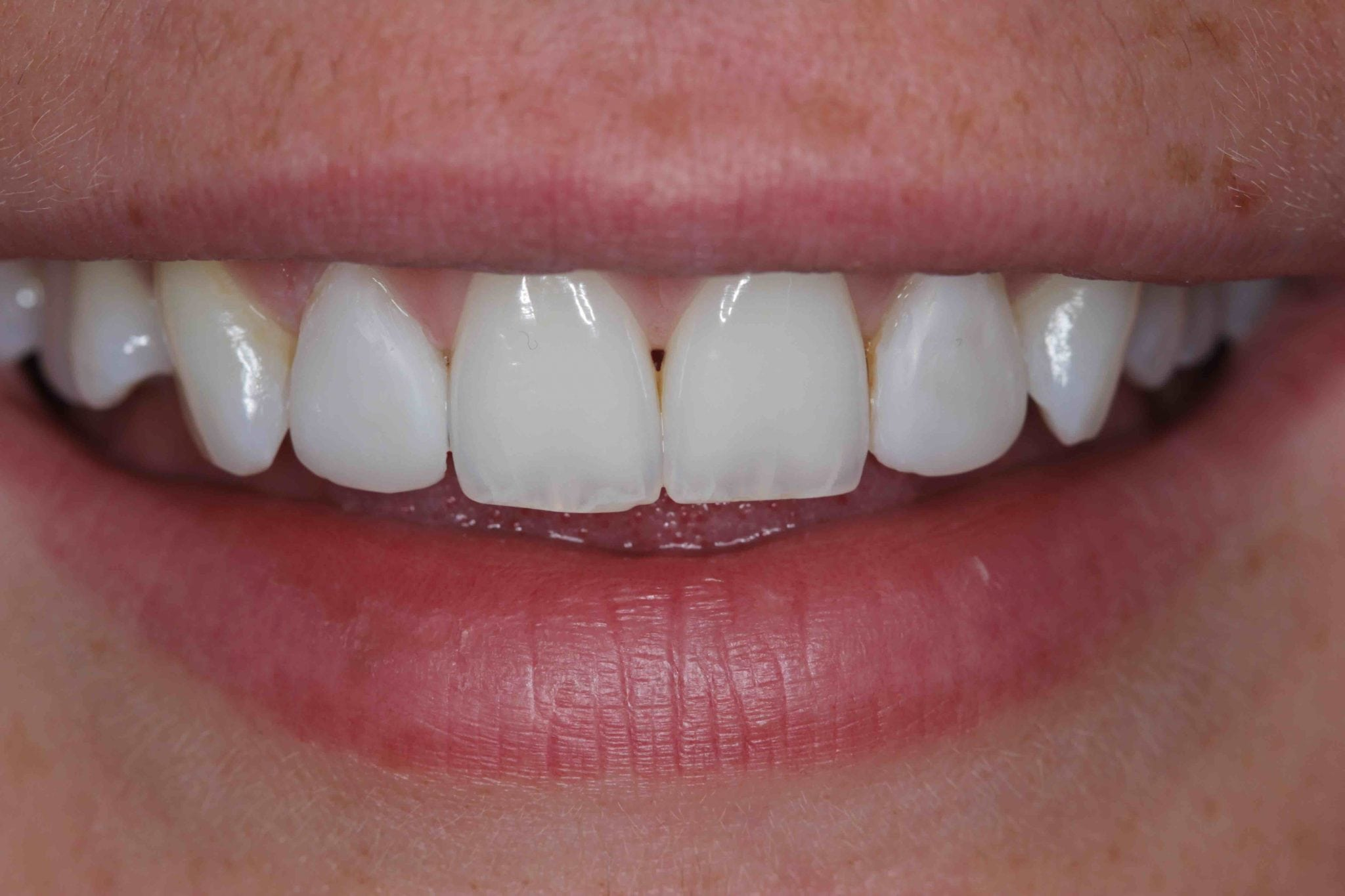 Dental Bonding in Preston Lancashire - Front Teeth After bonding Photos