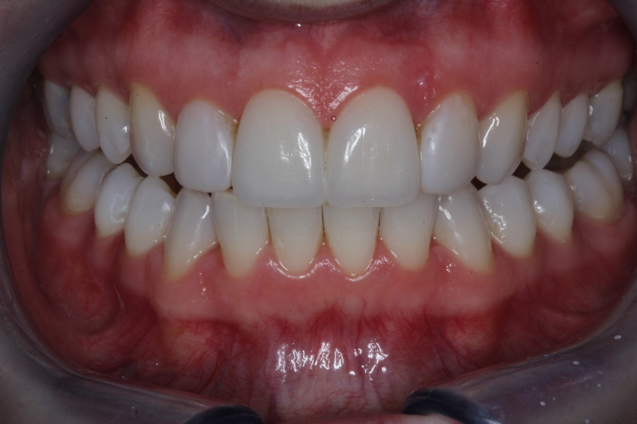 Porcelasin veneers and Dental bonding - after image