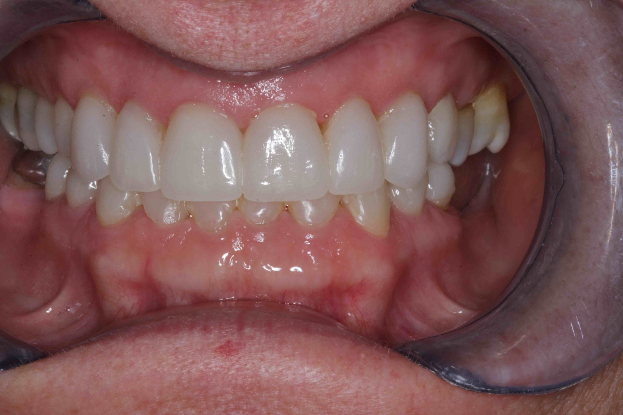Broken Teeth Before after photos - After Treatment
