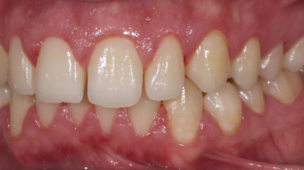 Dental bonding smile gallery after treatment pictures