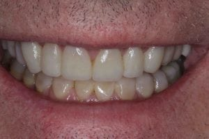eroded teeth smile makeover before after photos