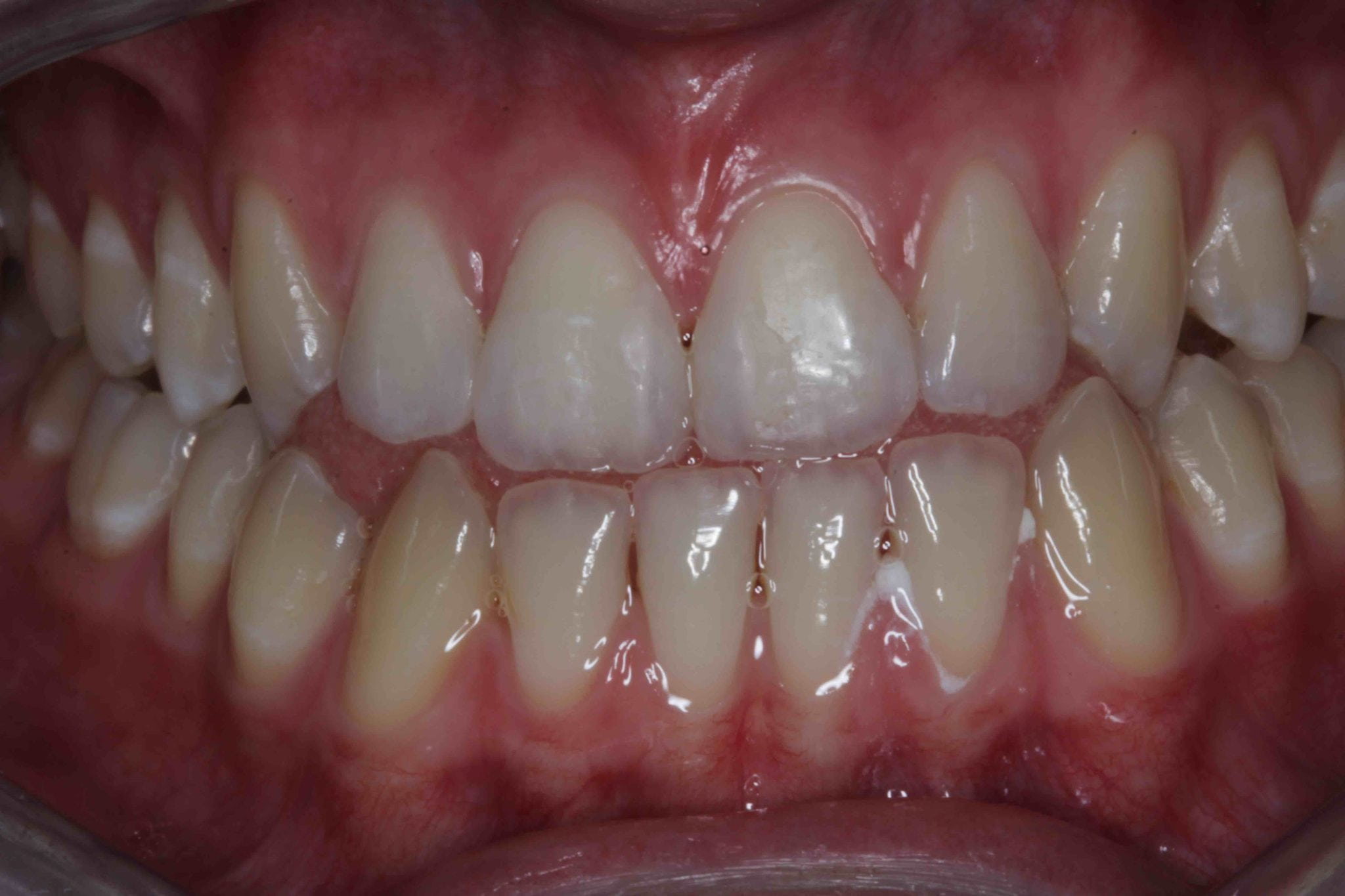 Teeth Bonding for Gaps Between Teeth after treatment photos