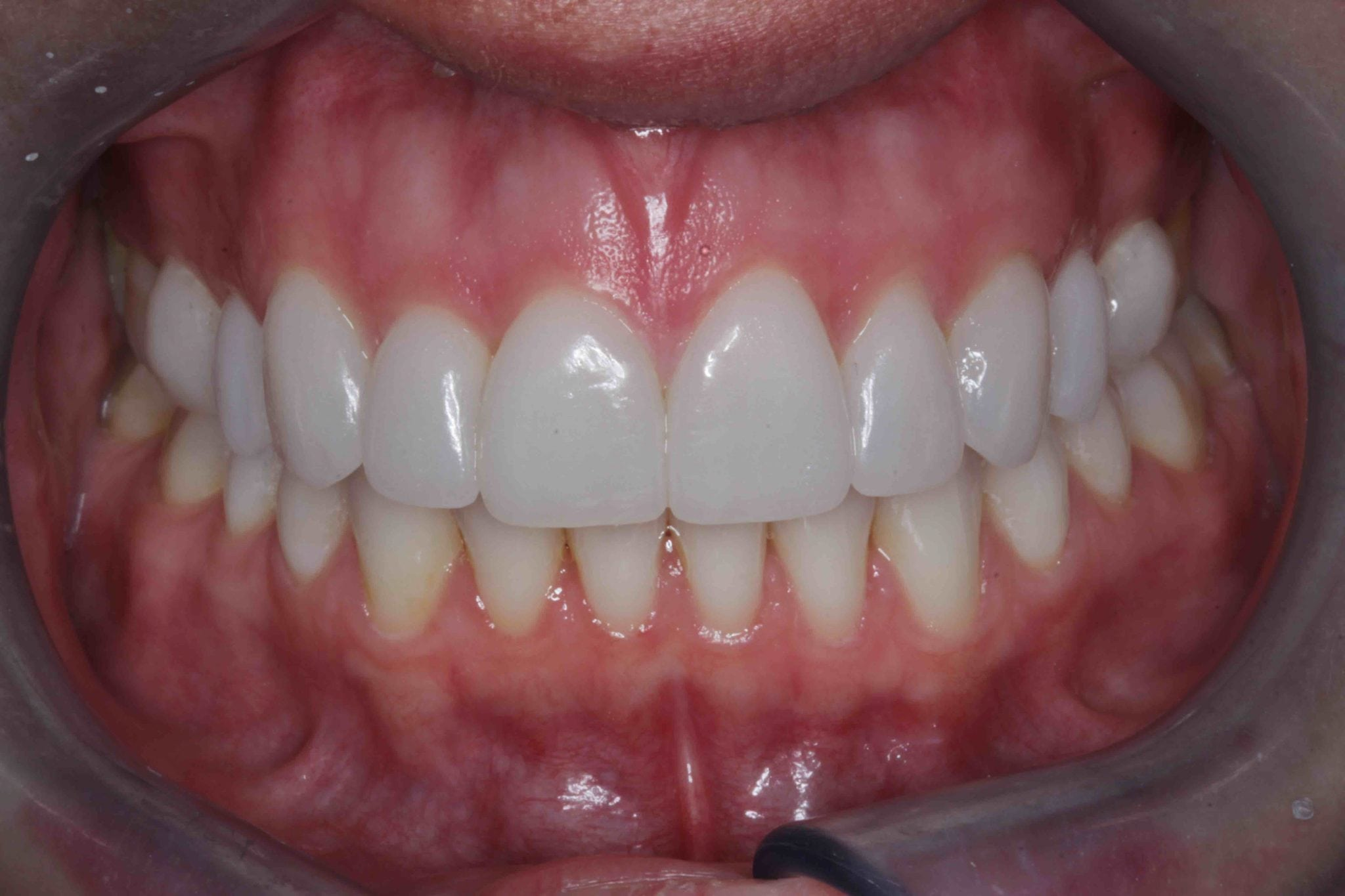 Porcelain Veneers Before and after Smile makeover photos
