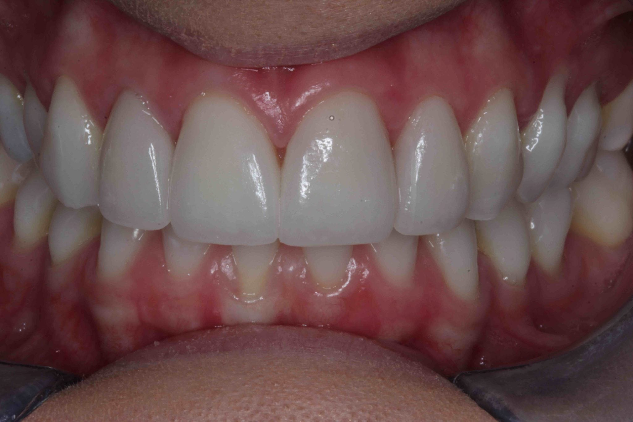 Cosmetic Porcelain Veneers after treatment picture