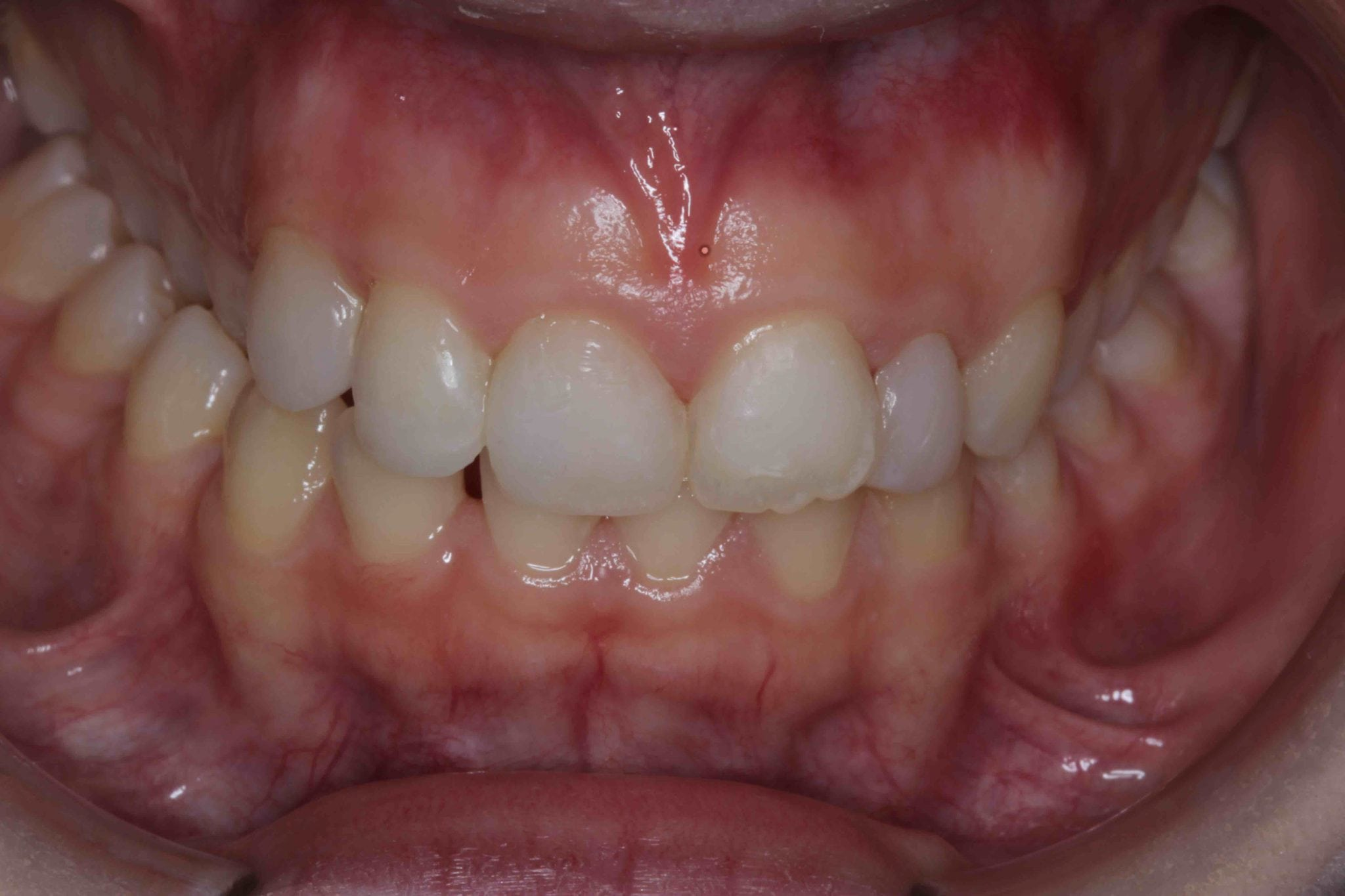 Tooth coloured Filling After Treatment Picture