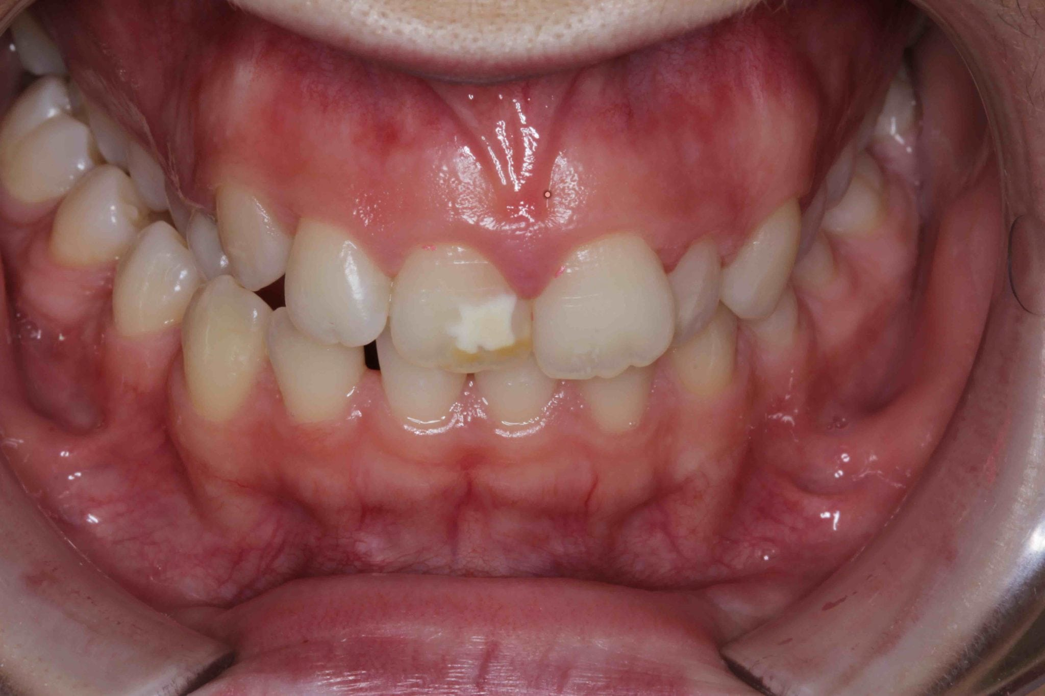 White fillings before after Treatment Pictures