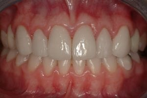 Smile makeover with 8 dental crowns