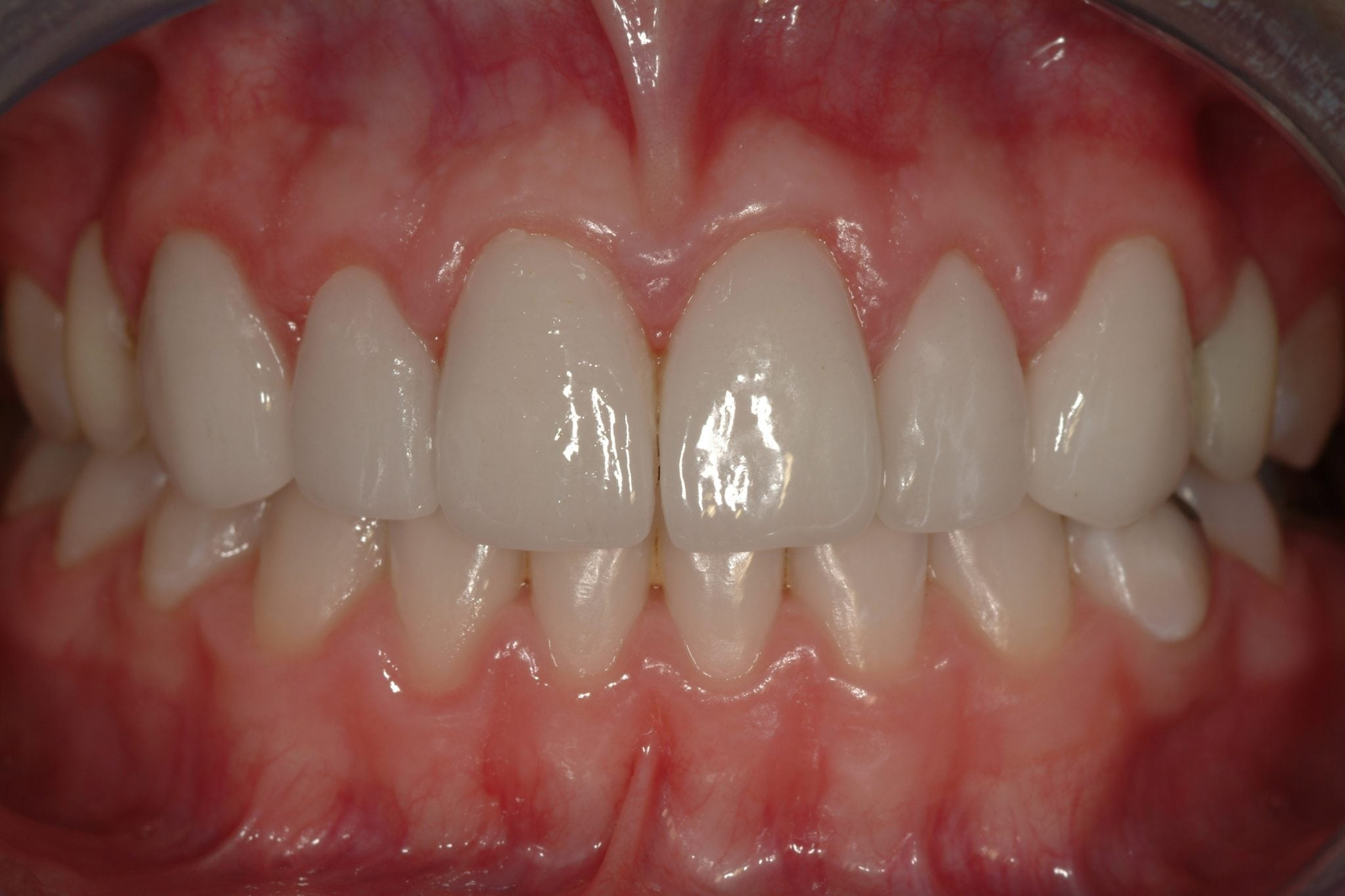Smile Makeover Dental Crowns After treatment Pictures