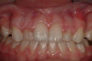short teeth before crown lengthening and ceramic crowns