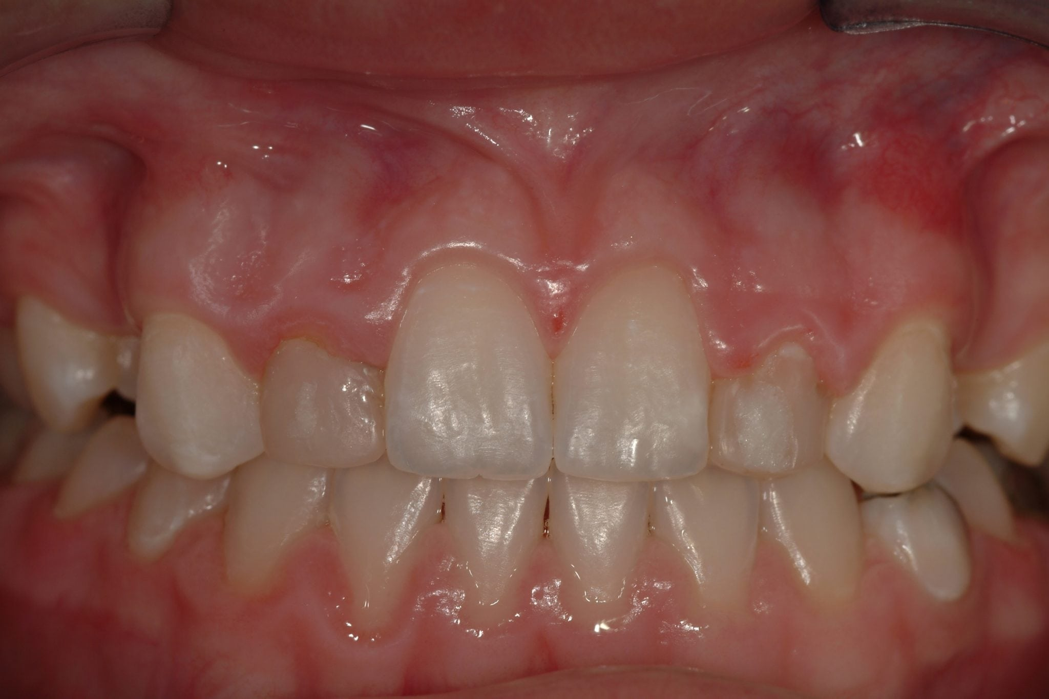 Cosmetic Dental crowns Before treatment