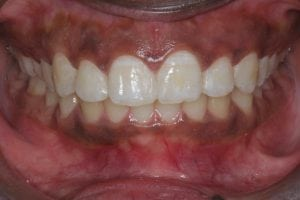 Front Teeth Gaps closed with dental Bonding - after photo