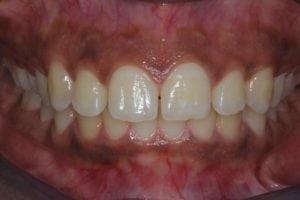 Cosmetic Bonding closing gap between front teeth - before treatment photo