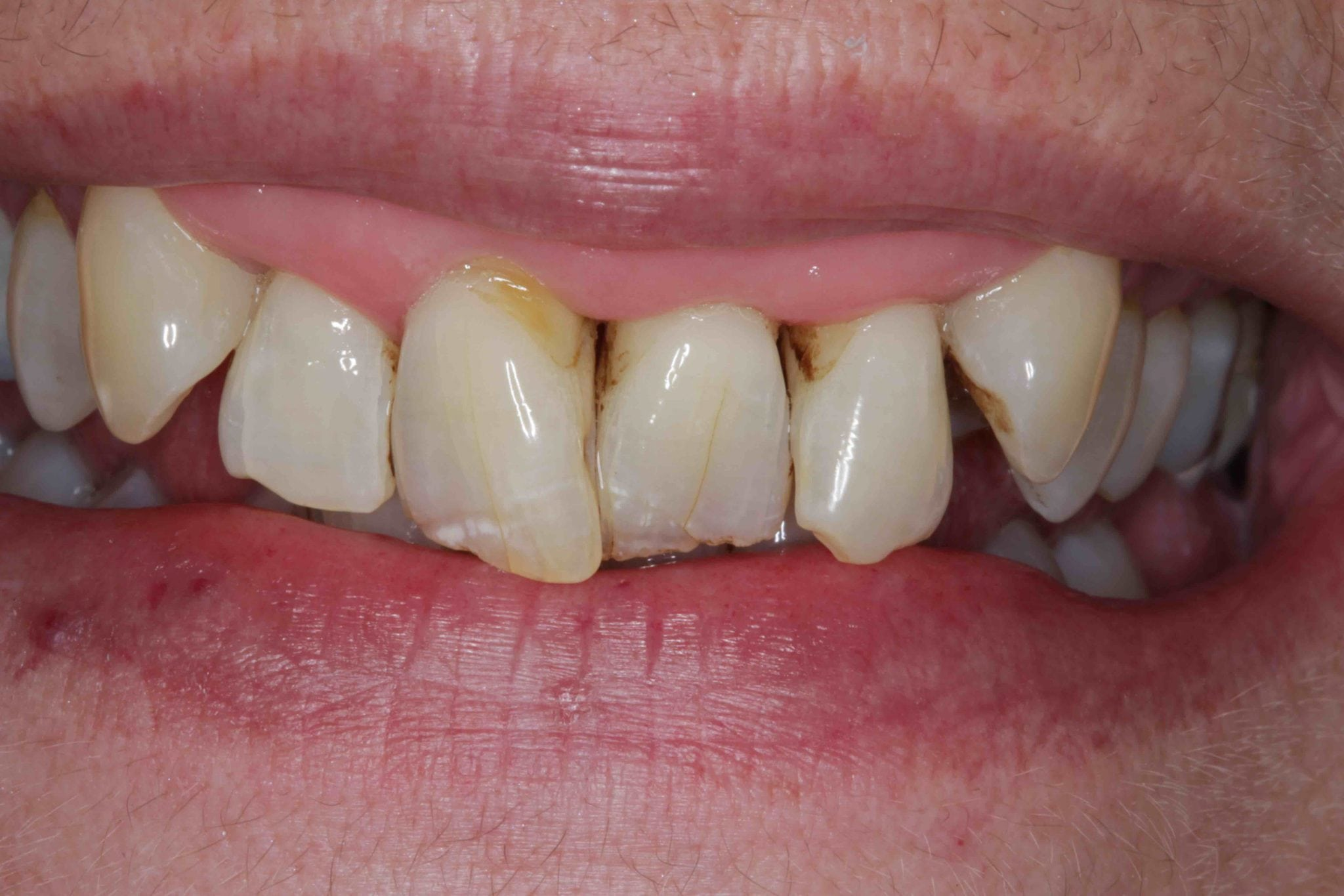 smile makeover before after - dental crowns
