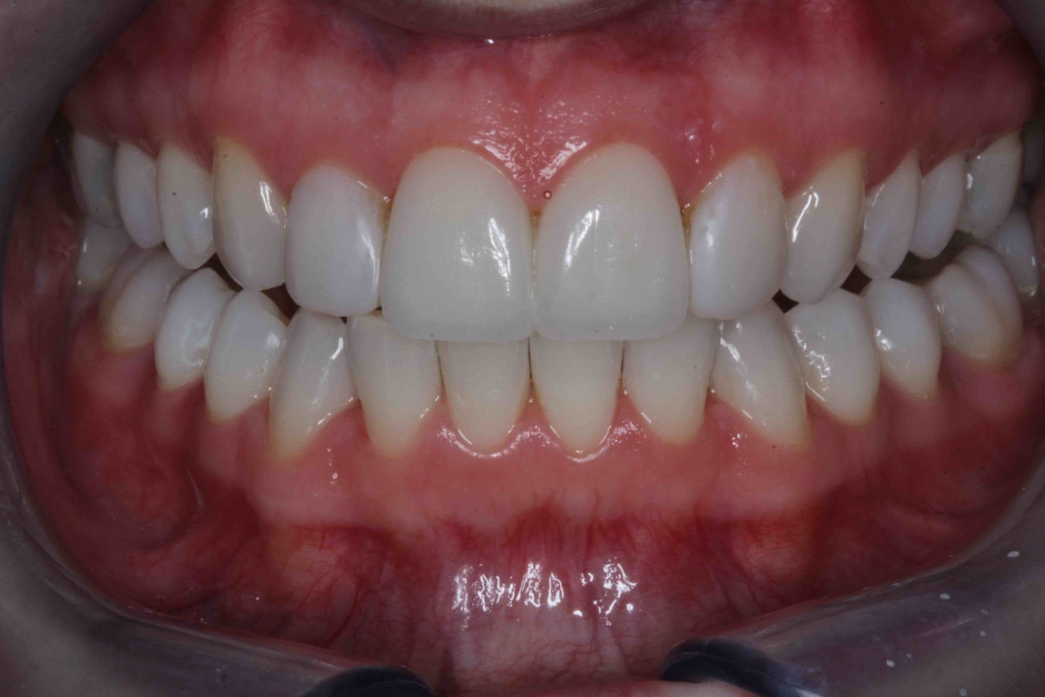 Porcelain veneers Smile Makeover after photos