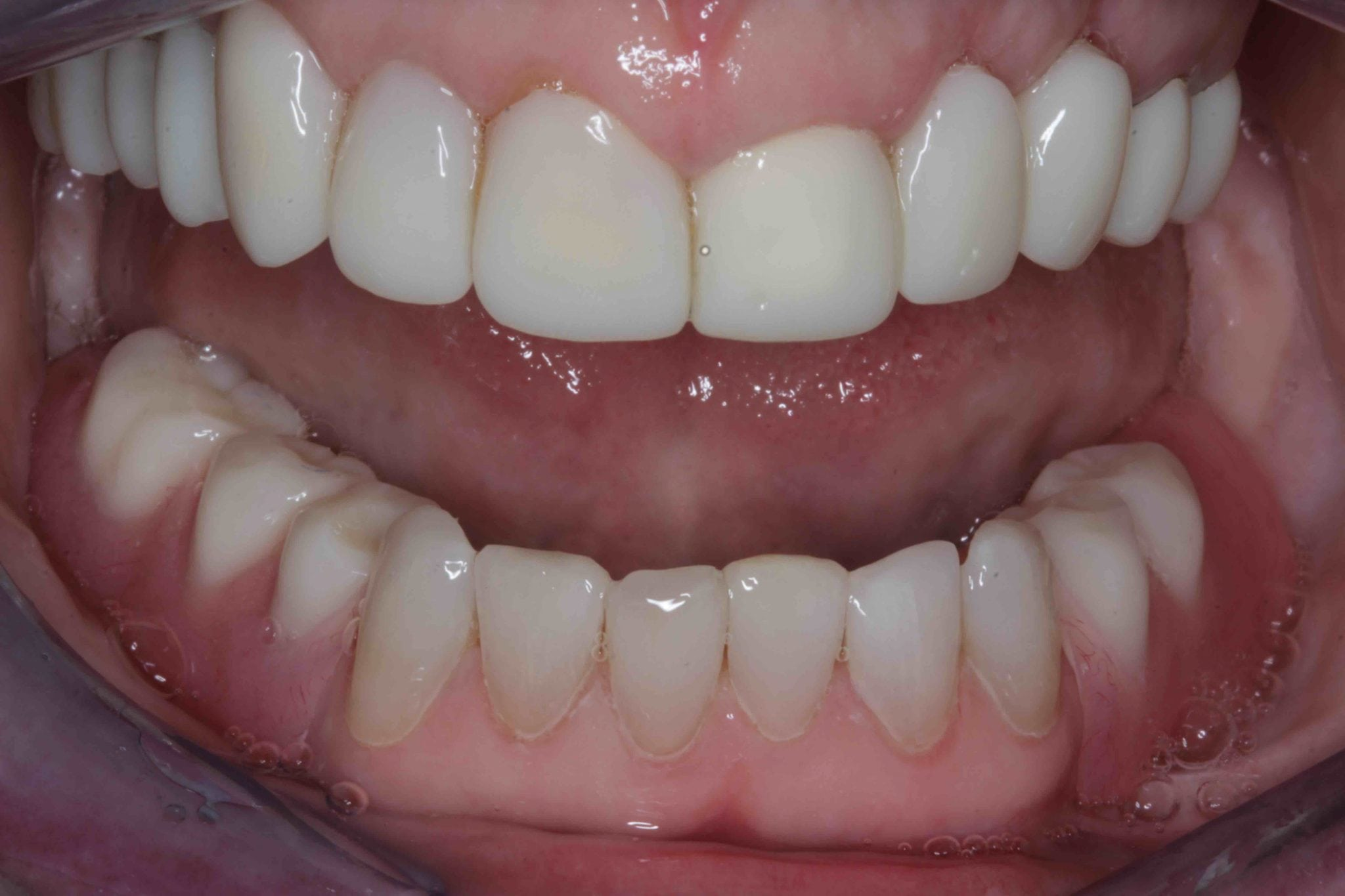 Smile make over after treatment photo