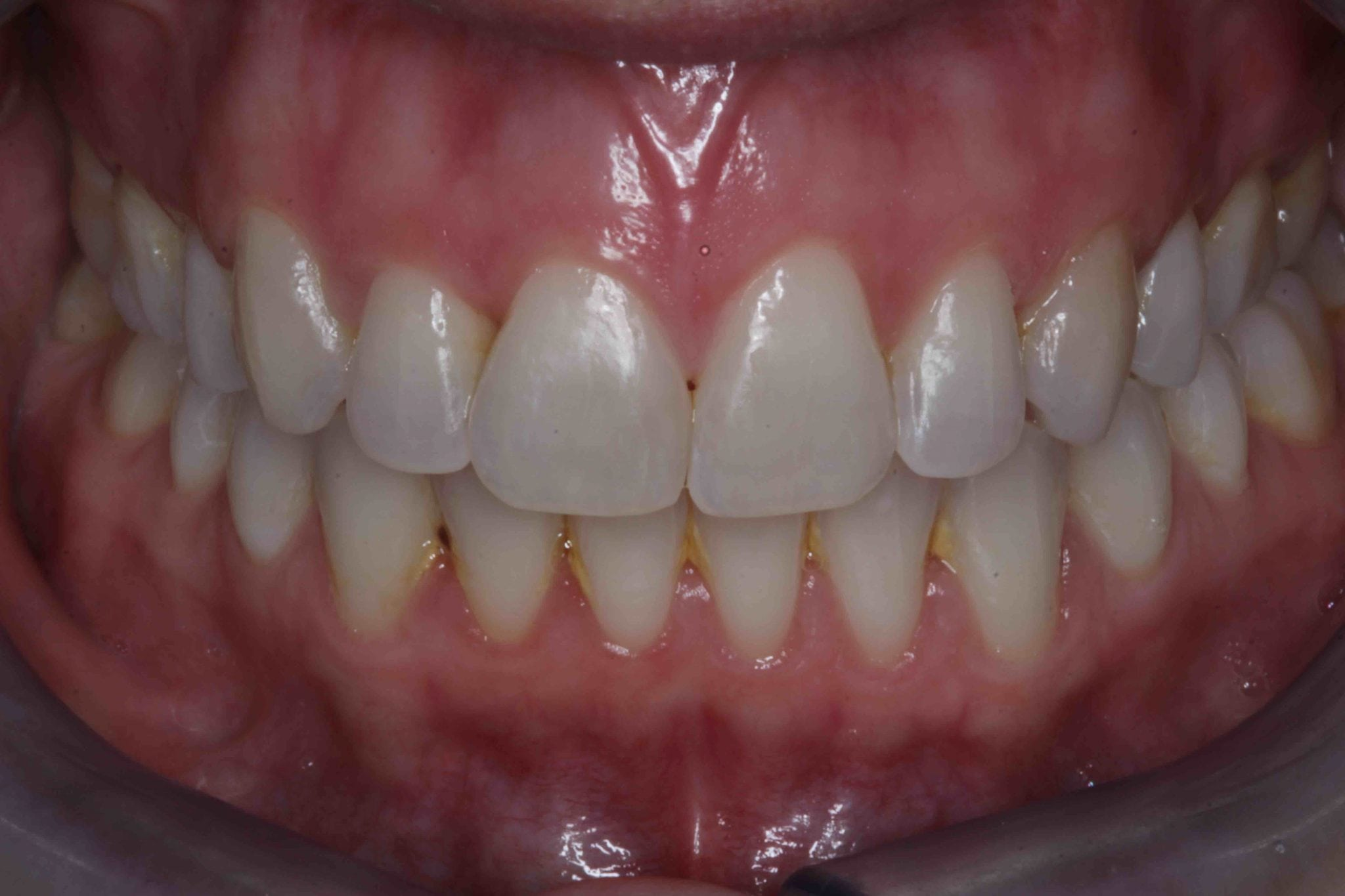Porcelain Veneers Before and after images