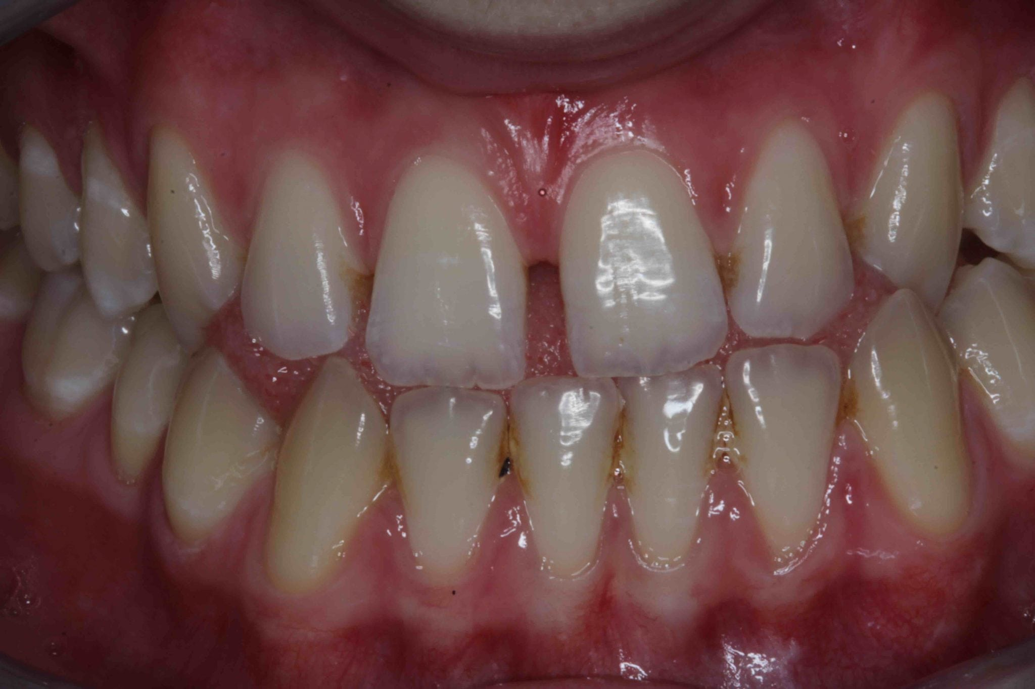 dental bonding for gapped teeth before and after treatment photos