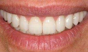 gummy smile correction - after treatment image