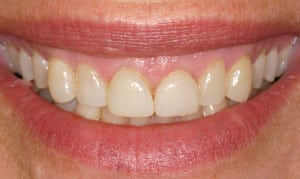 gummy smile before and after images
