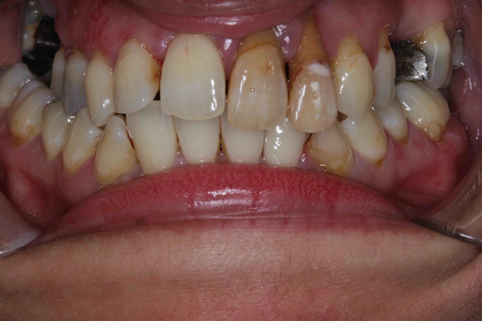 Smile Makeover before and after with dental bridges