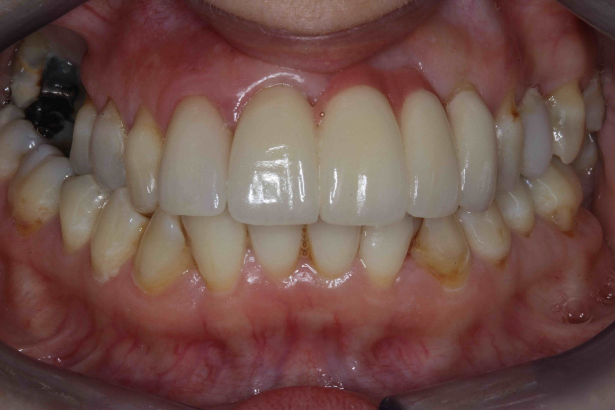 Smile Makeover before after - Upper dental Bridge gallery