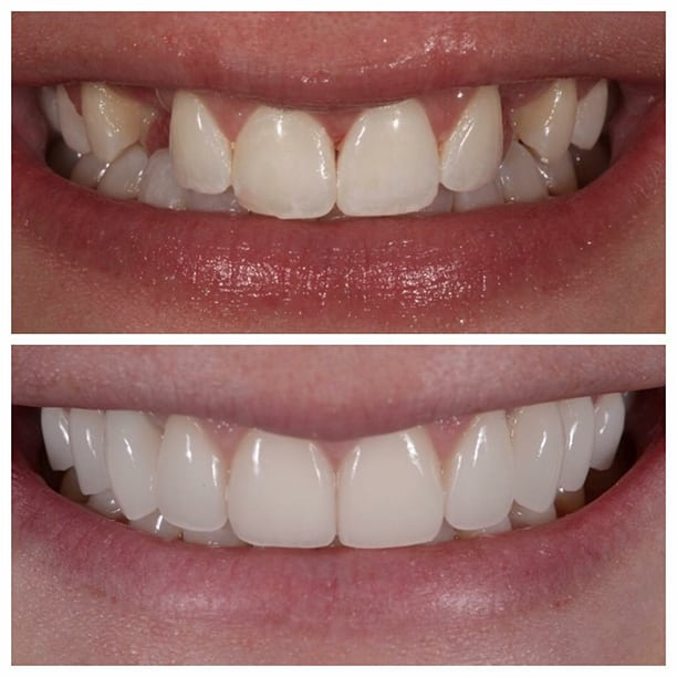 Cosmetic Dentist in Preston Smile MakeOver
