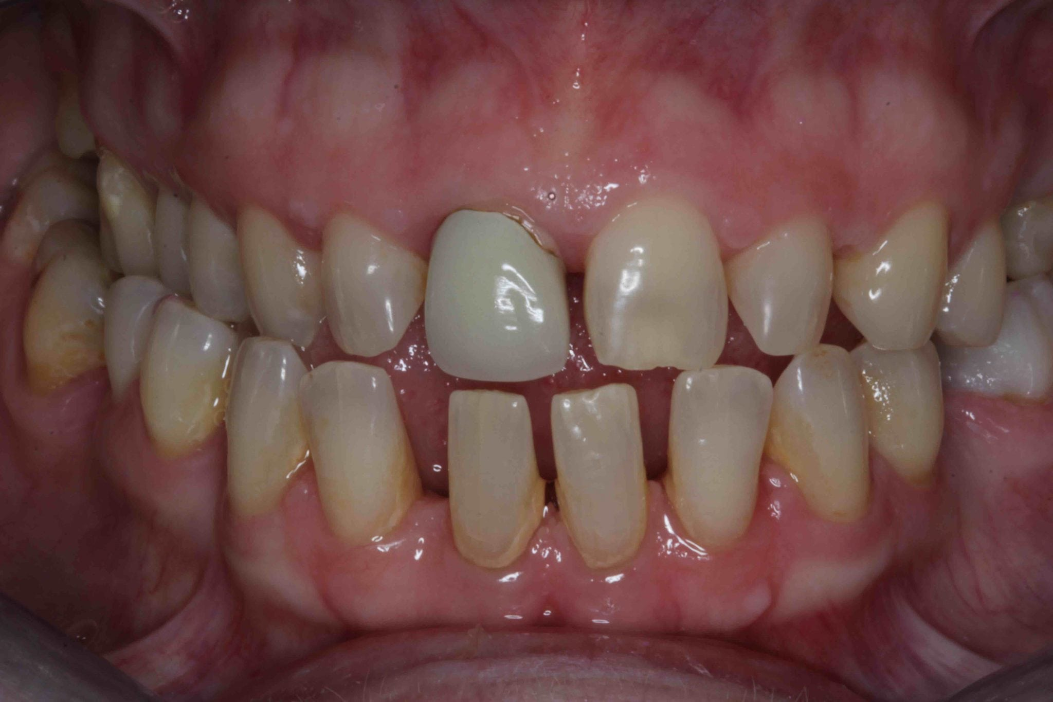 Veneers before treatment picture