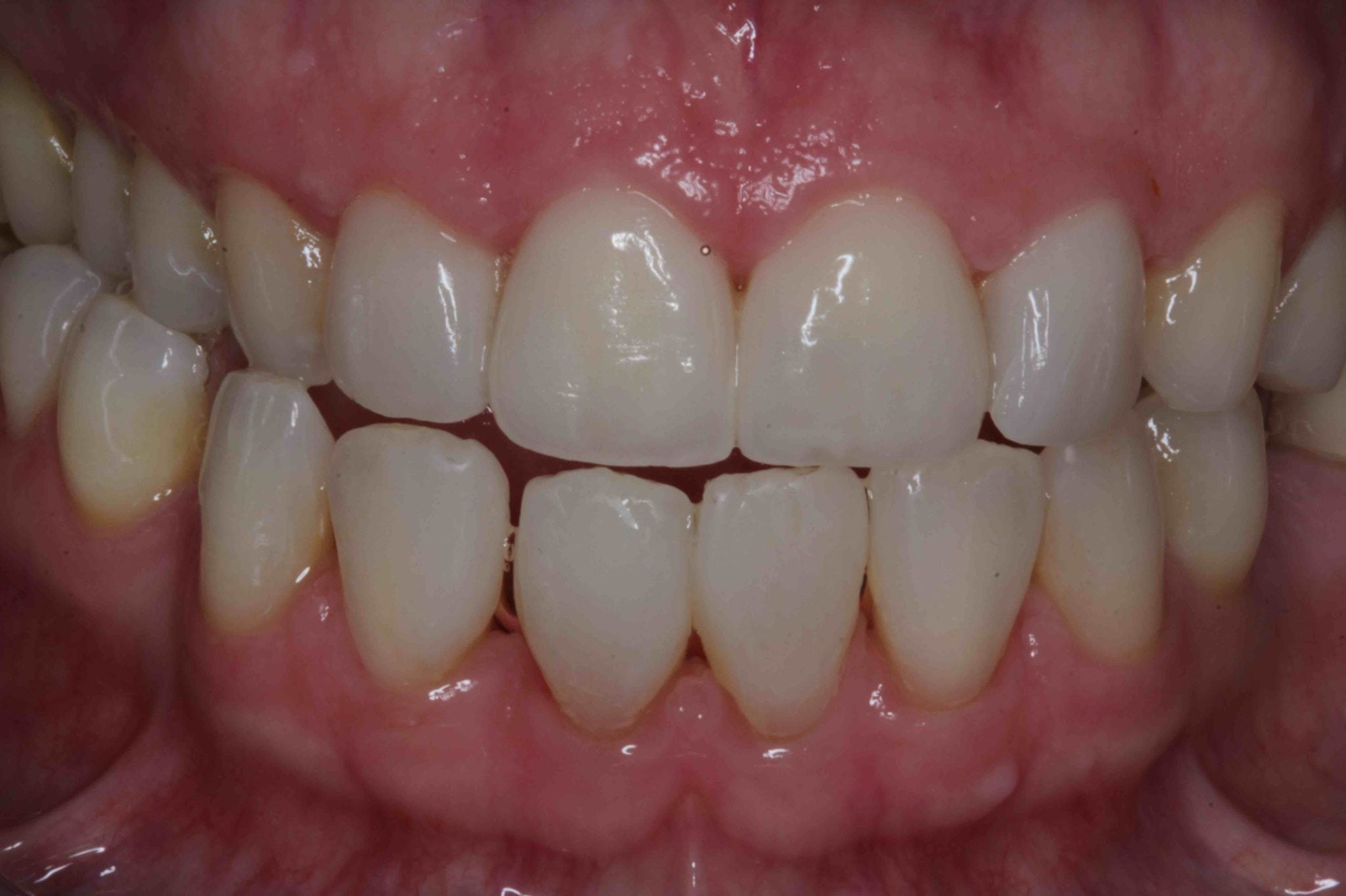 Dental Porcelain Veneers After Photo by award winning cosmetic dentist