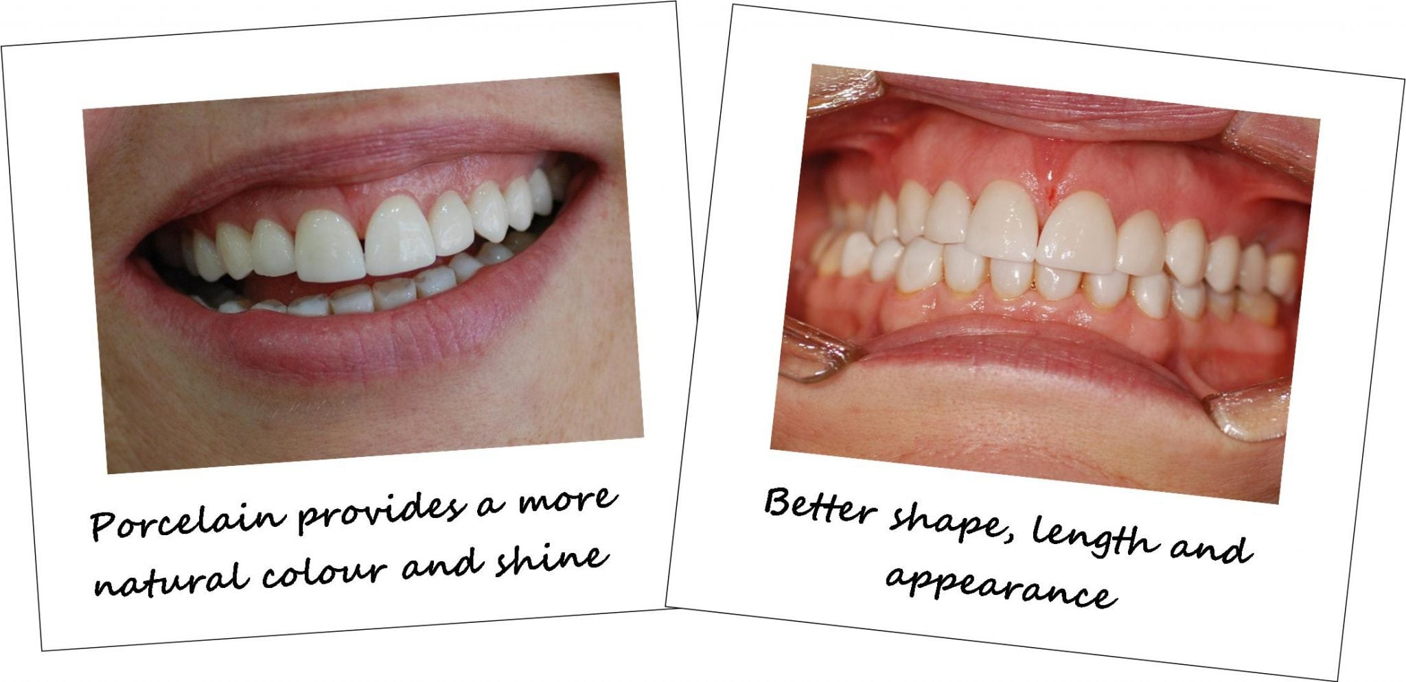 Cosmetic tooth veneers before and after photos