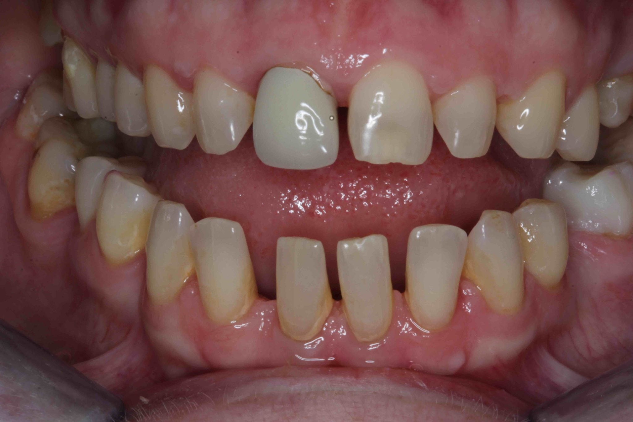 Porcelain Veneers Smile Make over in Lancashire