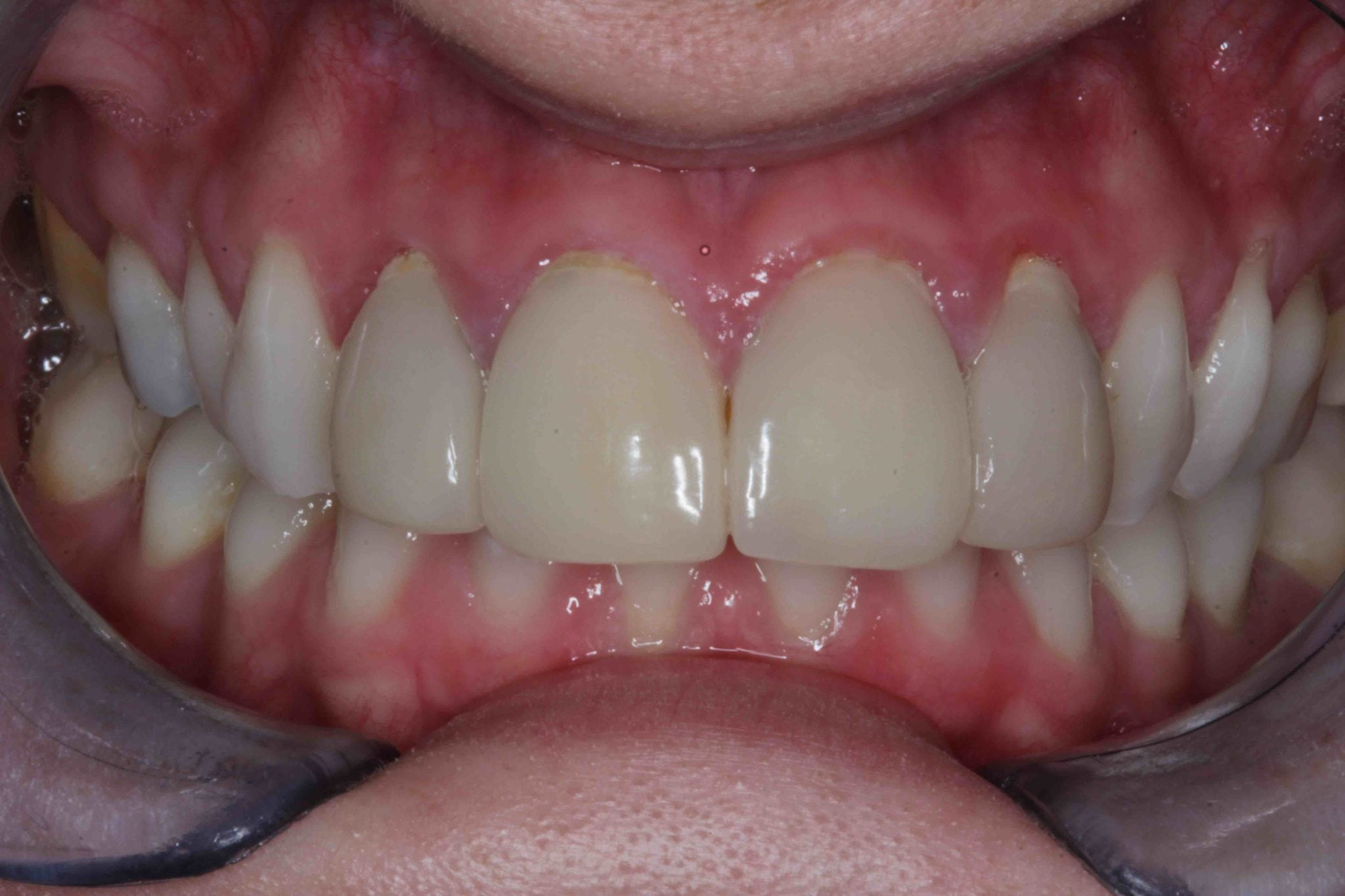 Veneers before after pictures