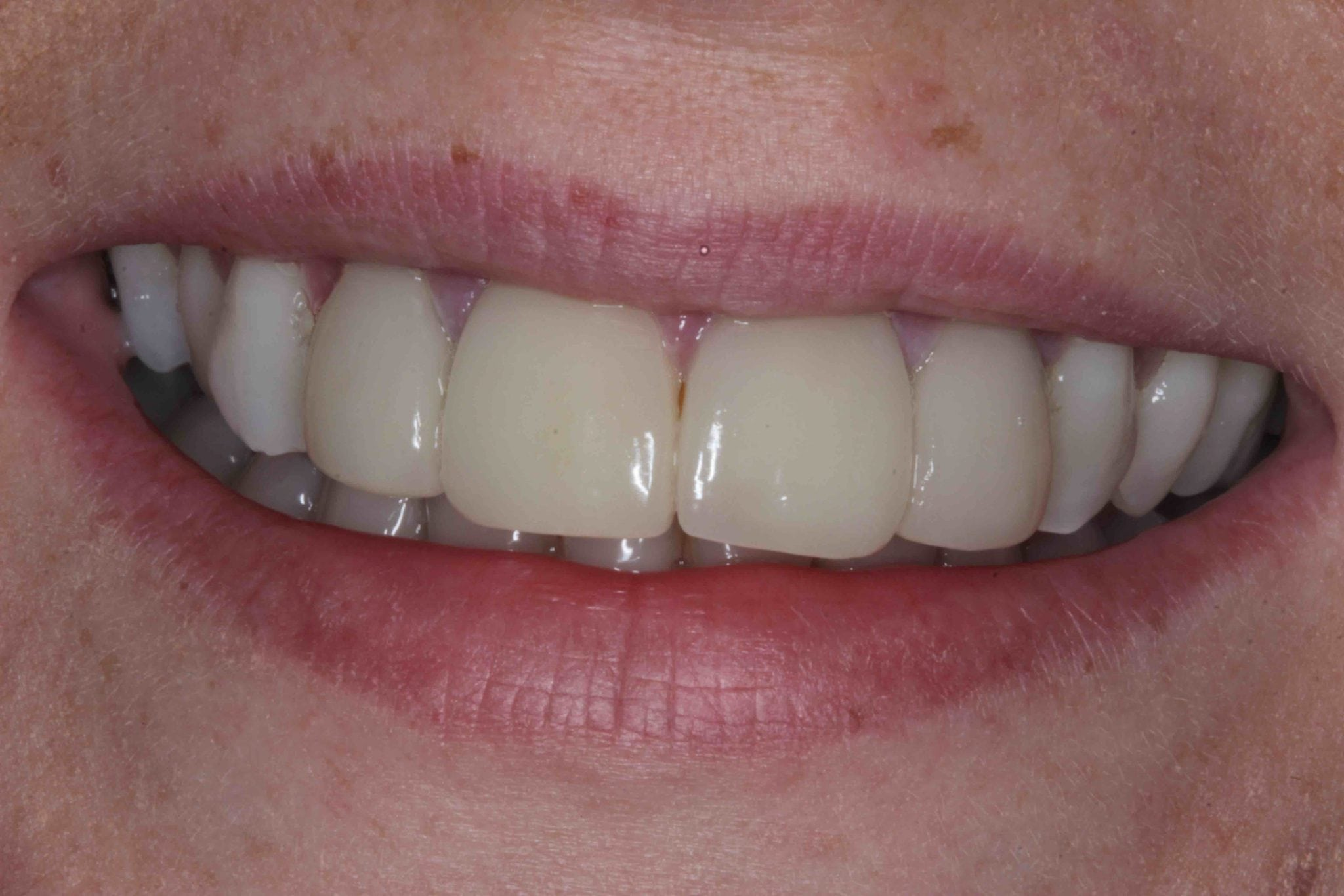 Porcelain Veneers before after pictures - failing old veneers