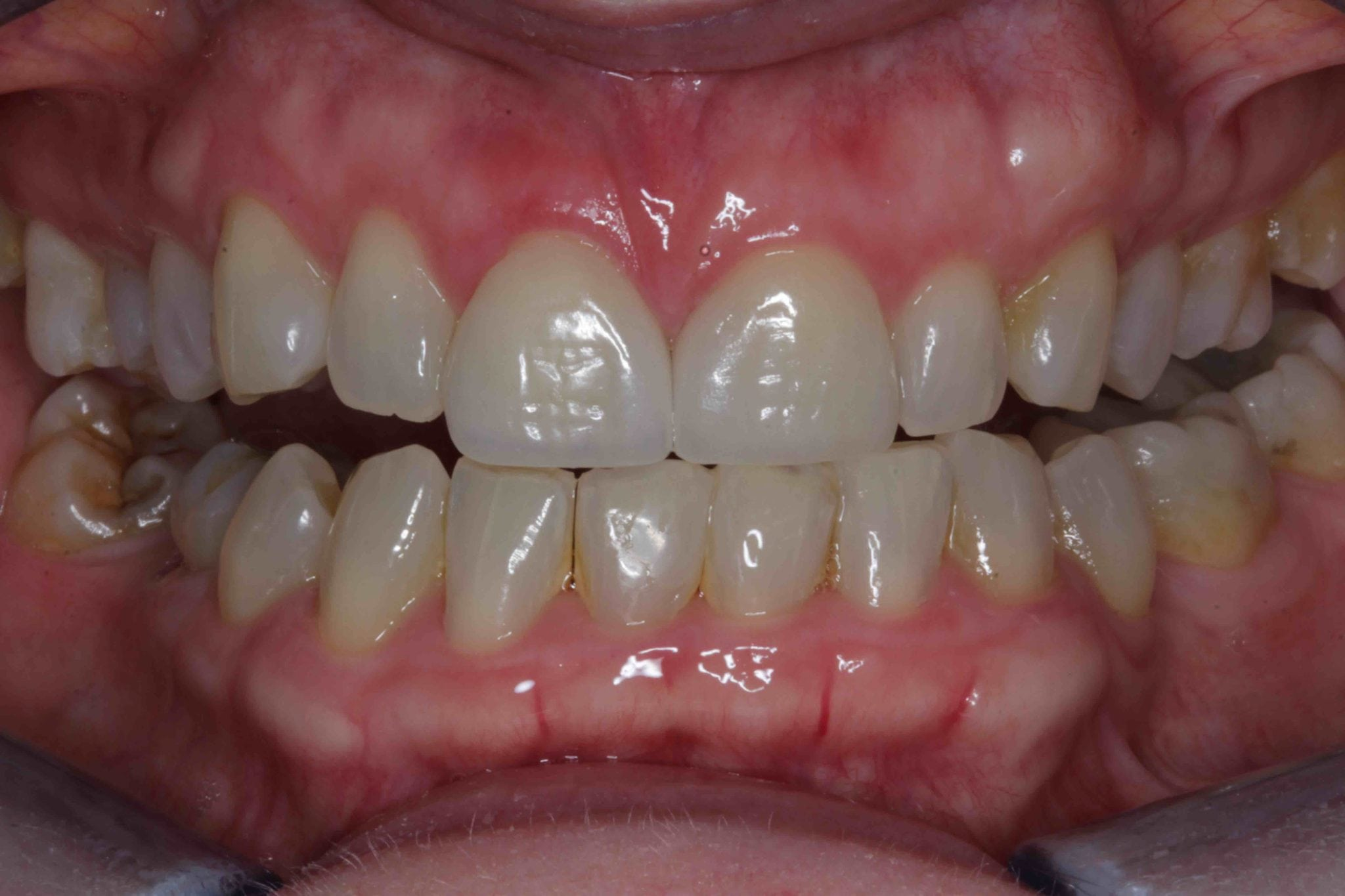 Worn Front Teeth Treatment - Dental Bonding After Pictures