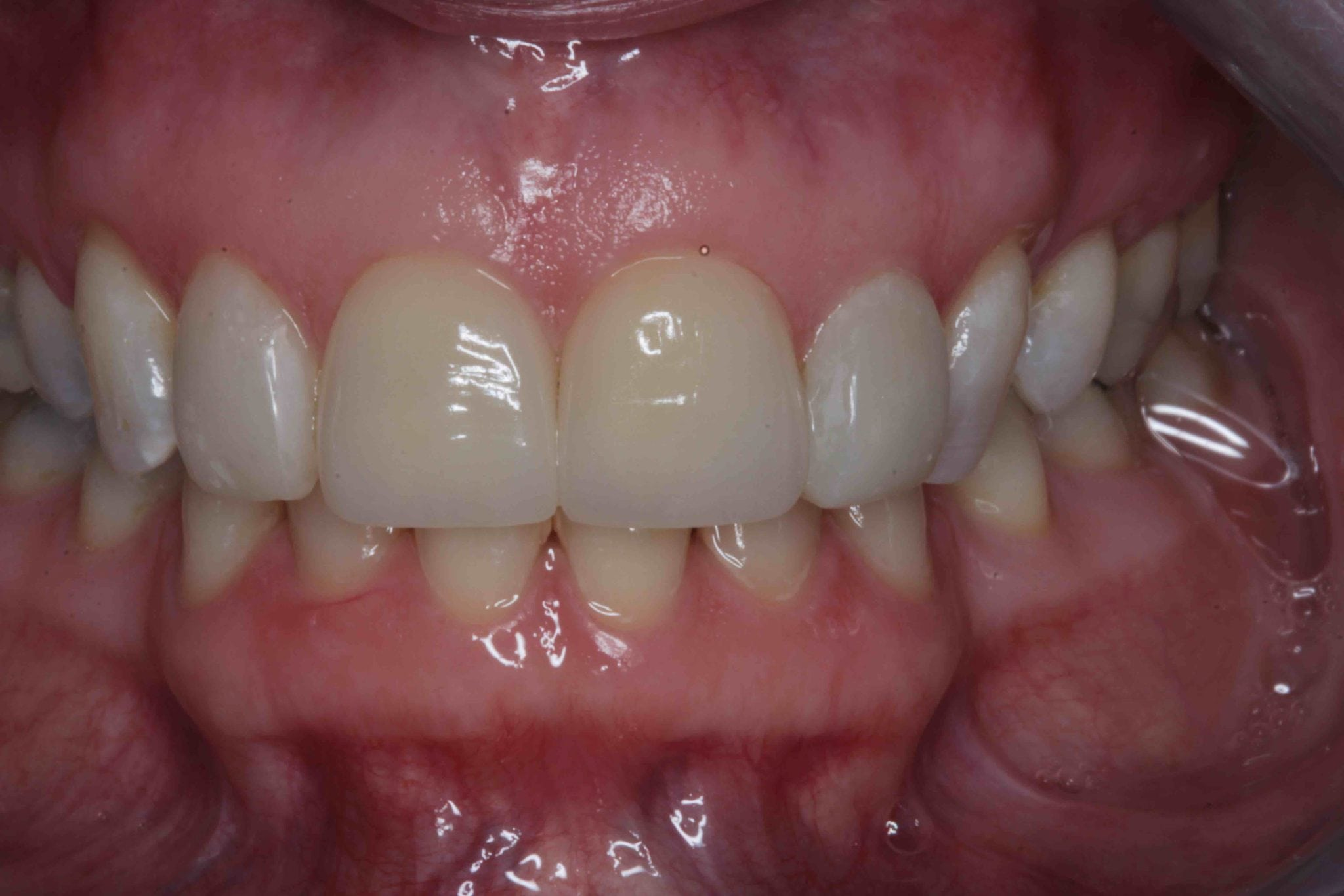 Teeth Bonding for severely stained front teeth - after treatment photos