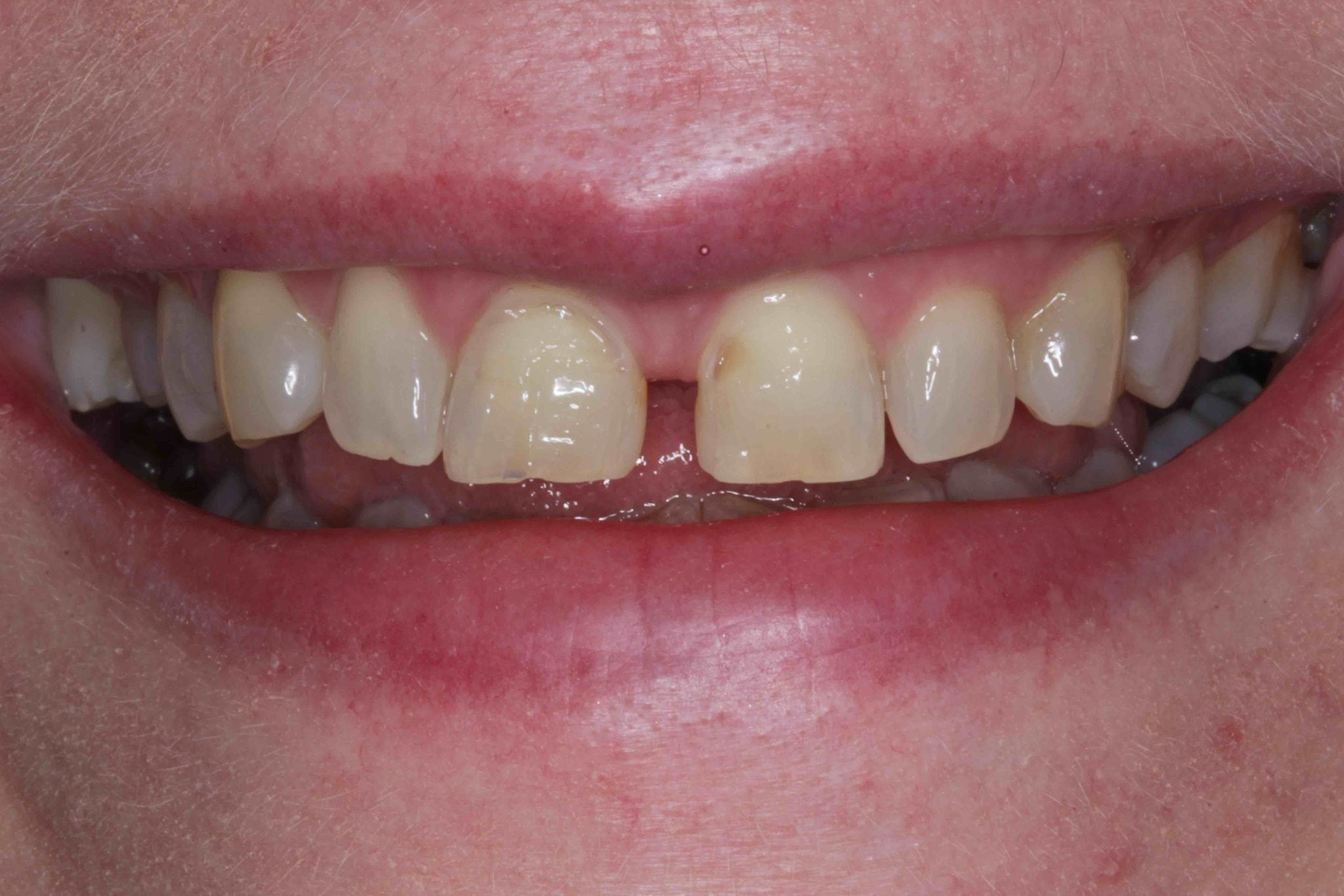 Tooth enamel and erosion Front Teeth Treatment Before Pictures