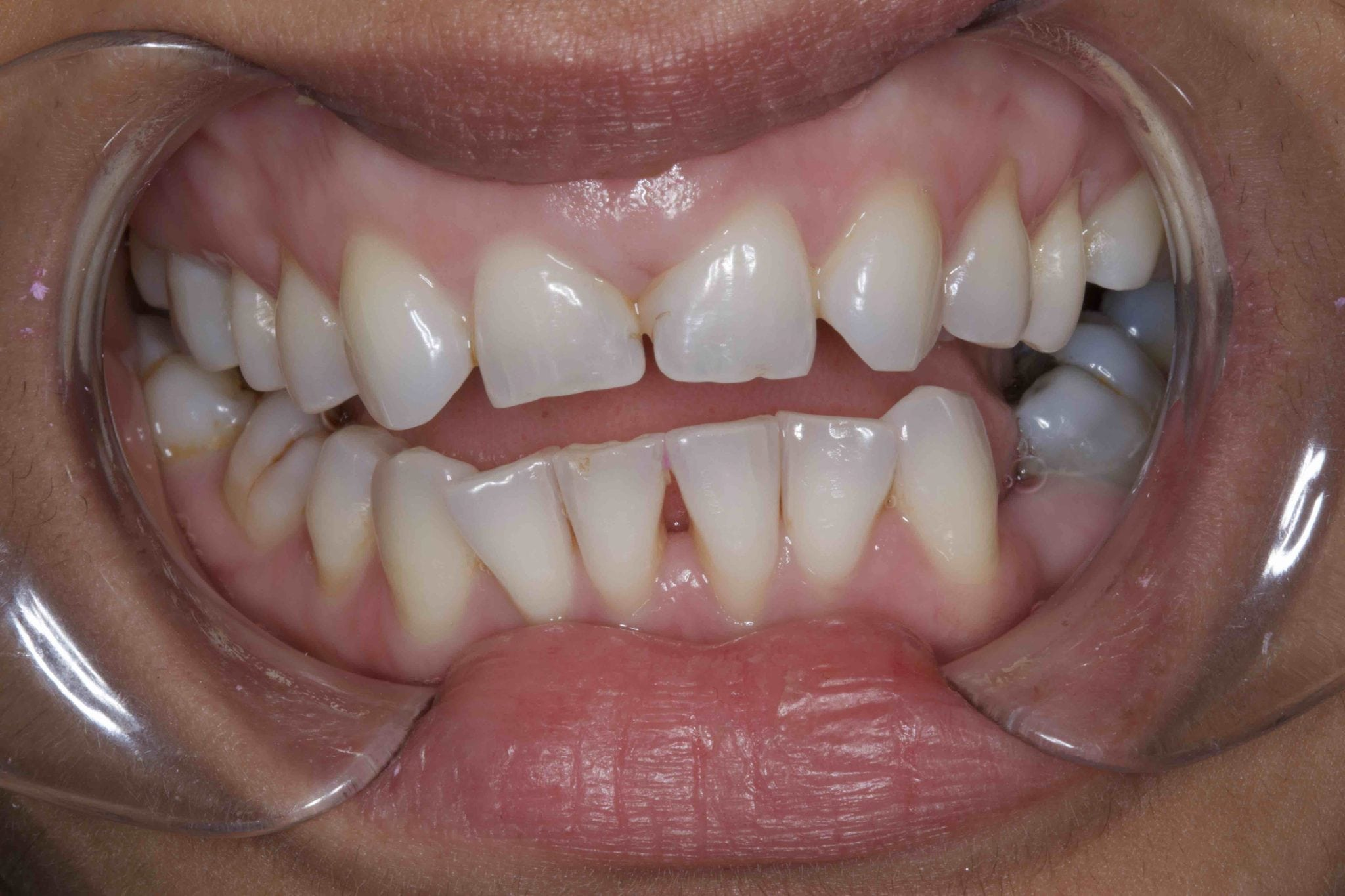Replacing missing teeth with dental bonding before treatment photos